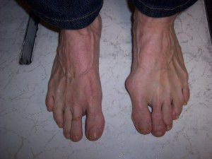 Bunions can prove painful, get bunion treatments from the Washington Bunion Center