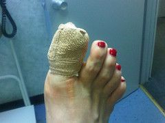 Had unexpected toe surgery today. Owie! by TheGirlsNY, on Flickr