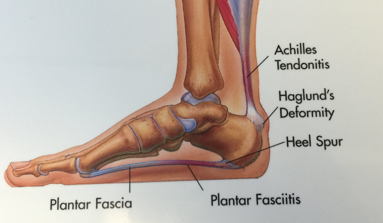 Seattle & Bellevue Heel Pain Center | Issaquah Foot & Ankle Specialists