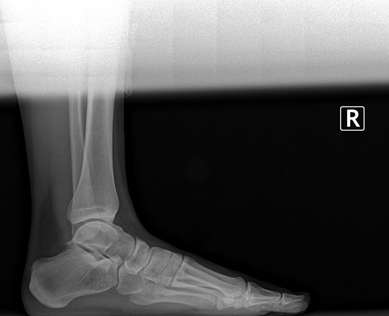 preoperative bunion and tailor's bunion