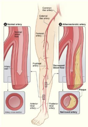 PAD causes arteries to become narrow