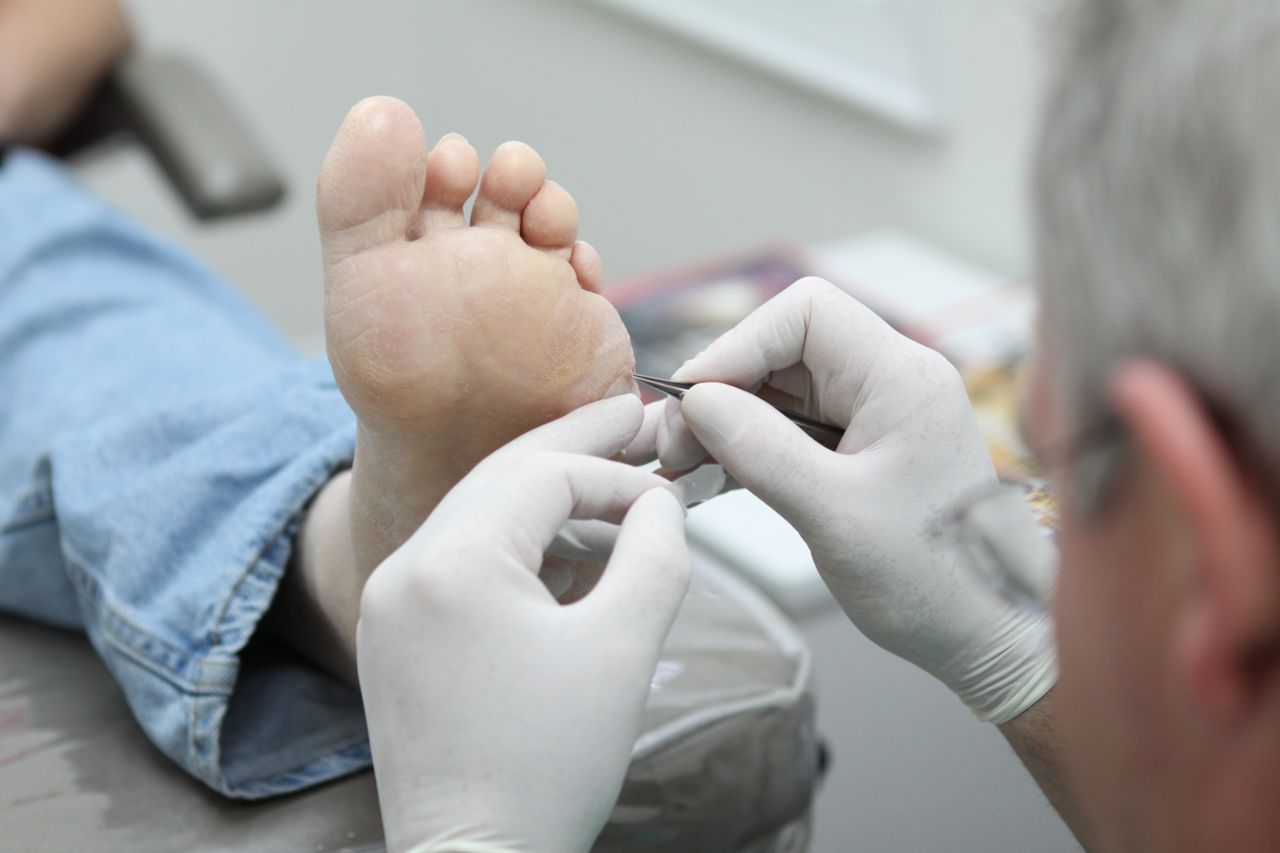 Foot Care Services We Provide in Our South Carolina Offices ...