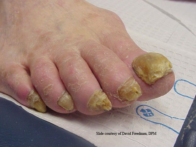 Effective Treatment for Toenail Fungus in Indianapolis | Indiana ...