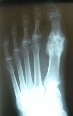 Great Toe Joint Arthritis
