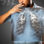 X ray of man smoking