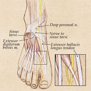 Compression of the Peroneal Nerves   Parker Foot and Ankle