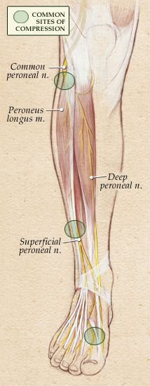 Compression of the Peroneal Nerves | Parker Foot and Ankle
