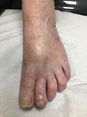bunion left foot post op