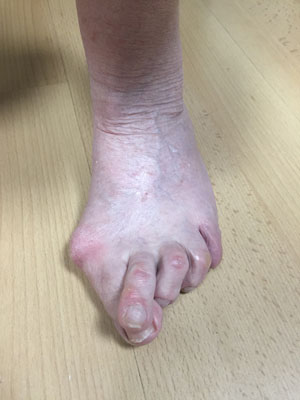 Bunion left foot pre op