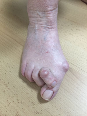 bunion right foot pre op