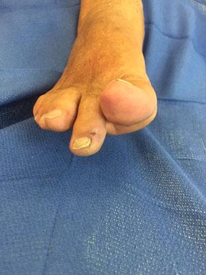 foot trauma pre-op