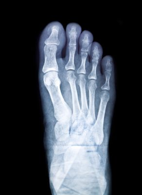 XRay for a Foot Fracture