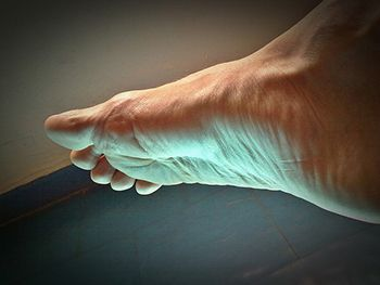 Foot Exam for Neuroma