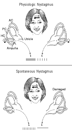 This figure shows nerve activity associated with rotational-induced physiologic nystagmus and spontaneous nystagmus resulting from a lesion of one labyrinth.