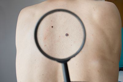 Watch your moles, they could be skin cancer.