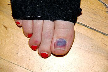 Black and Bruised Toenail