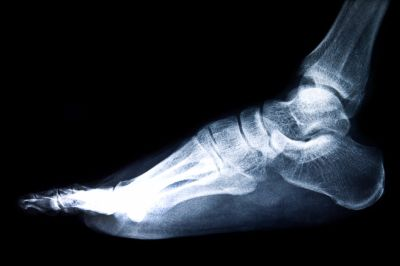 X Ray of Stress Fractures in Feet