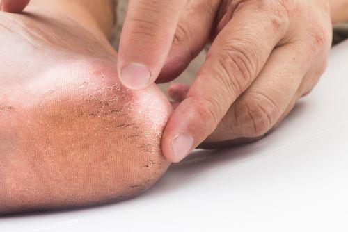 Examining Dry Heels