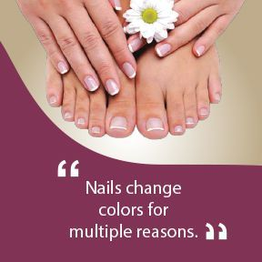 Black Toenail Treatment Carson City NV