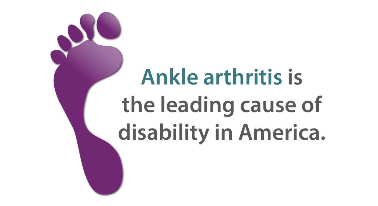 Ankle arthritis infographic