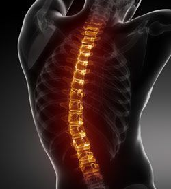 Back and neck injuries from a car accident can be very serious, and can sometimes result in permanent, life-altering damage.
