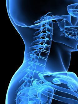 Whiplash is a common, but serious, injury in car accidents.
