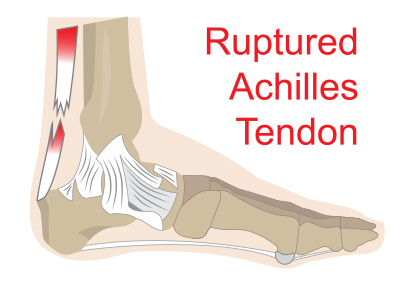 achilles tendon rupture diagram