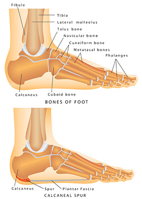 heel spur diagram