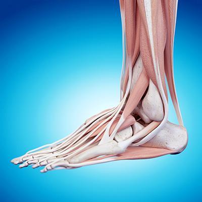 peroneal tendonitis digram