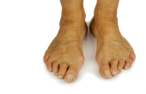 Deformed feet with Bunions