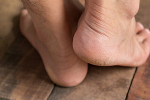 Pre-Diabetic Foot Care