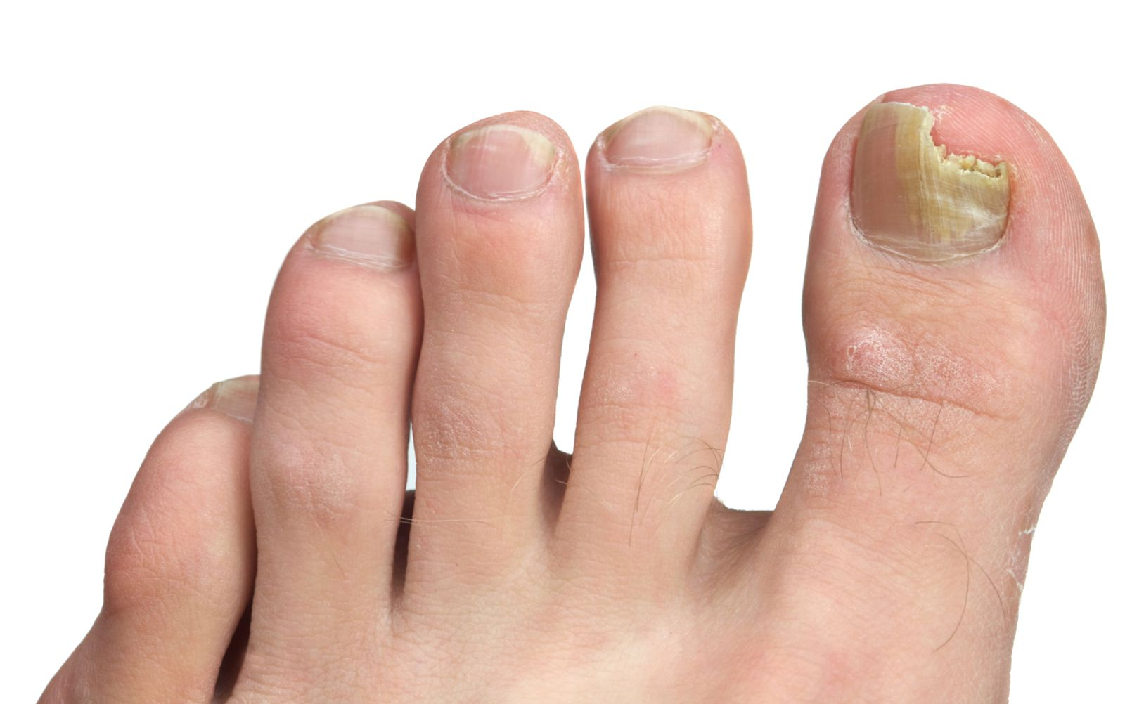 A fungal big toenail on a foot