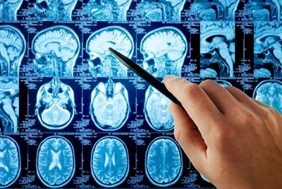 Brain damage shown in MRI