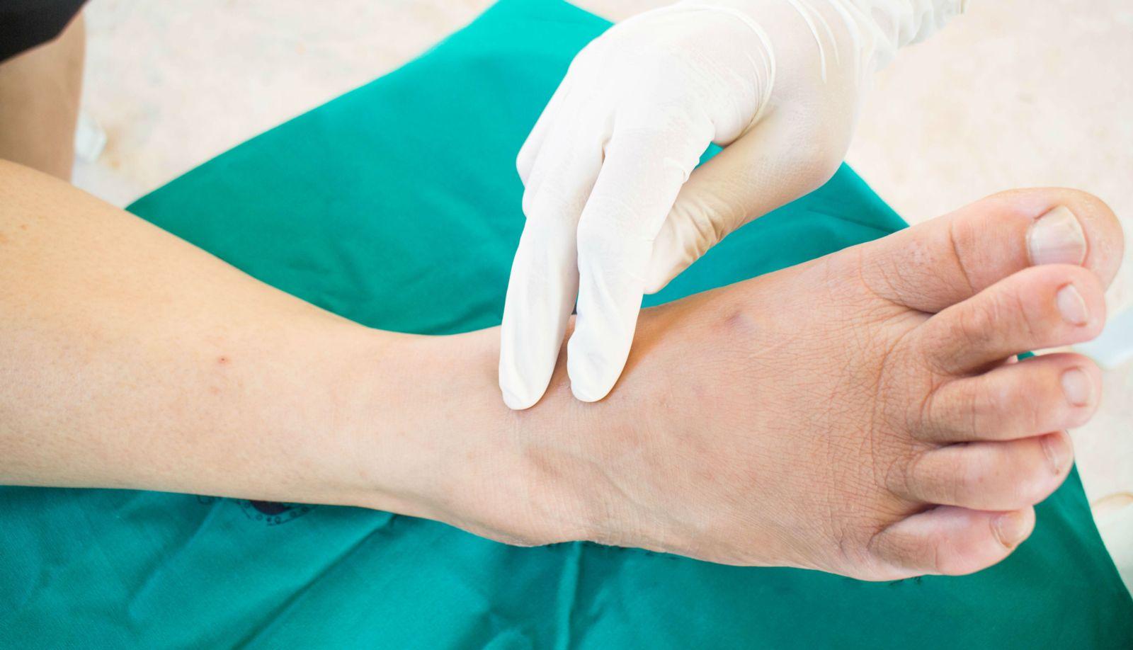 neuropathy exam