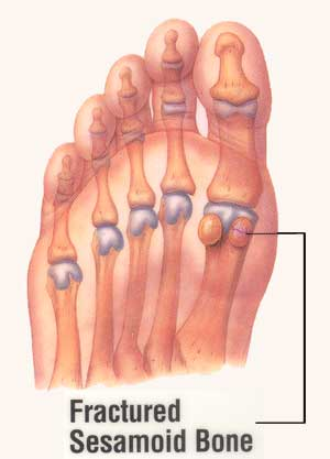 sessamoid fracture