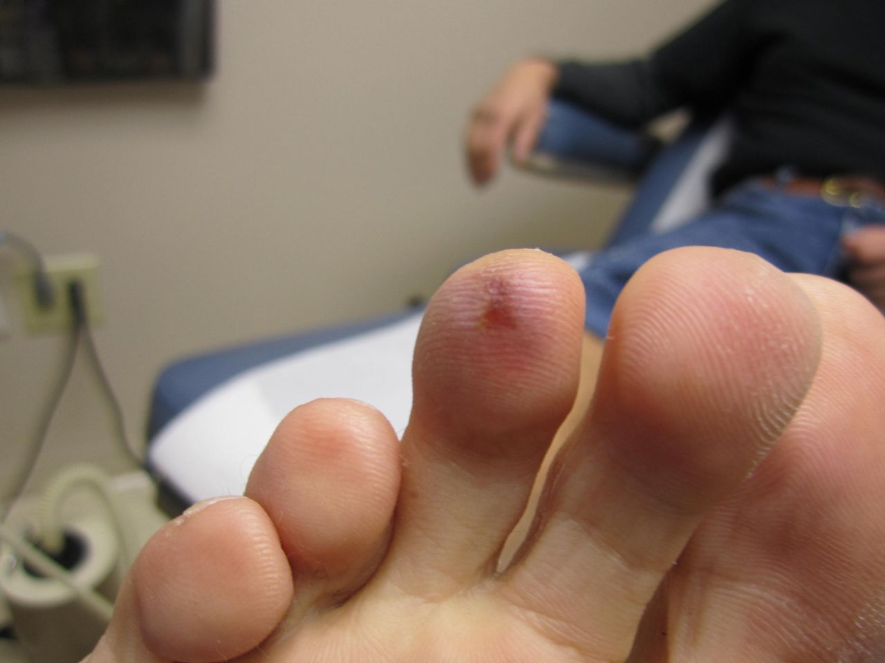 topical nitroglycerin raynauds