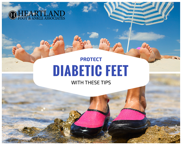 Protect Diabetic Feet