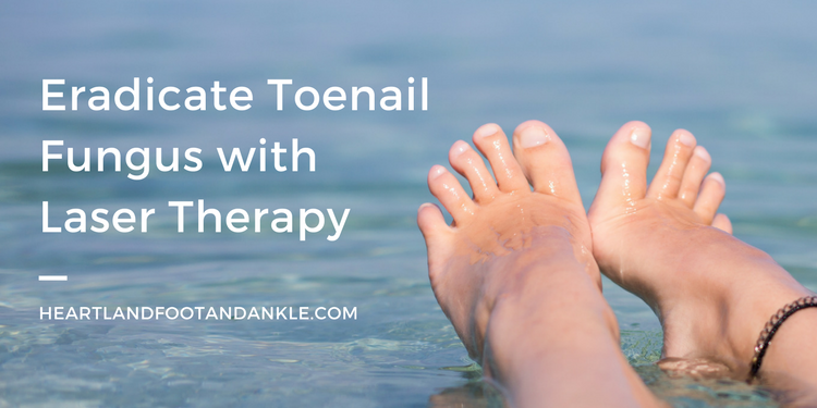 Eradicate Toenail Fungus with Laser Therapy