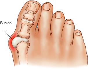 Painful bunion