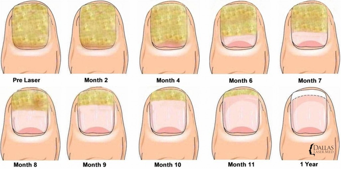 Stages of fungal nails