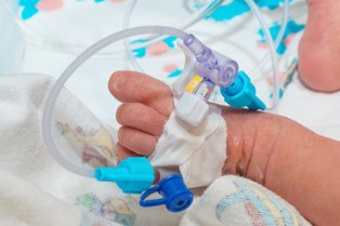 Birth injuries and birth defects