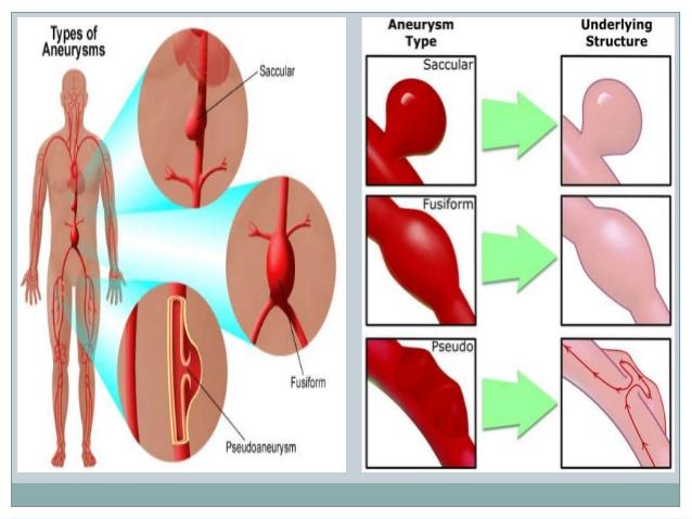 Infrarenal Abdominal Aorta Diagram - Electrical Work Wiring Diagram •