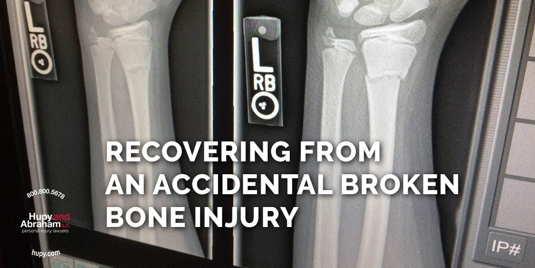 X-rays of bones with text saying Recovering from an accidental broken bone injury