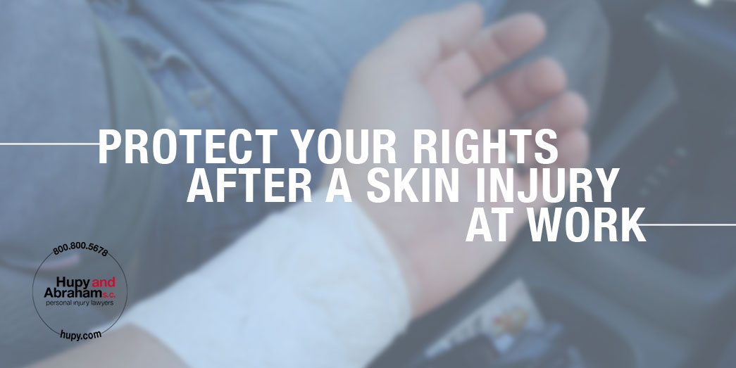 Image Representing Protect Your Rights After a Skin Injury at Work