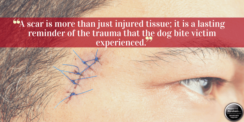 Dog bite injuries often result in severe and unattractive scarring