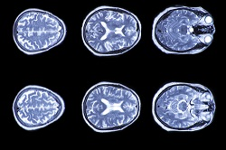Iowa car accidents can cause a variety of traumatic brain injuries