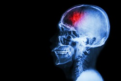 A closed head injury may be severe or fatal