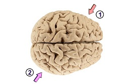 A coup-contrecoup injury causes damage to two sides of the brain