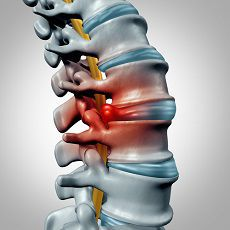 A herniated disc can have a substantial impact on your life