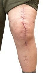 An open wound may leave a large scar, but it's worst effects can be life-threatening